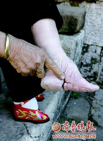 访鲁南山村最后小脚老太的三寸金莲