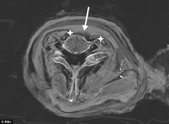 CT扫描木乃伊显示埃及法老遭割喉死亡图片