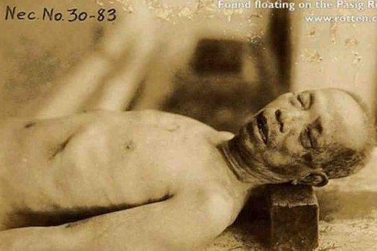 10张震撼图片 揭秘日本残酷的人体实验