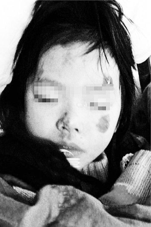 幼女被父打至骨折抛出车窗 父亲随即被车碾死